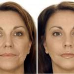 Botox-ein Nervengift macht Karriere