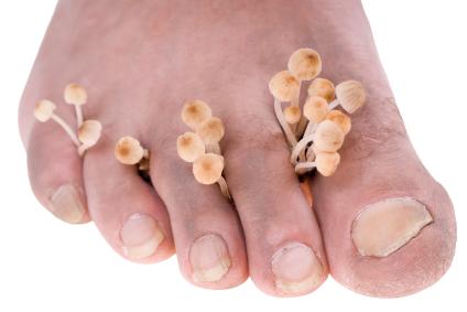 Vorbeugung gegen Fußpilz – Was tun gegen Fußpilz?