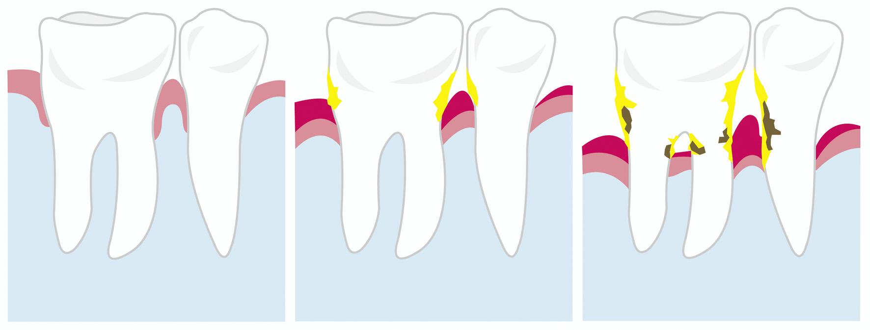 Wie entsteht Parodontitis