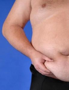 Fettabsaugung – Liposuction
