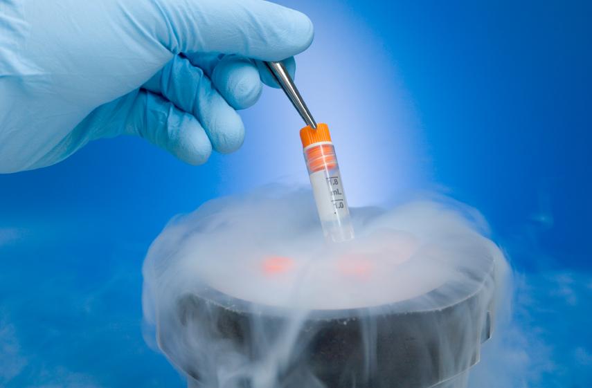 Kryokonservierung  Eizellen einfrieren