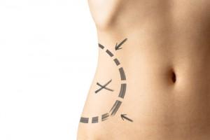 Wann ist eine Fettabsaugung sinnvoll?