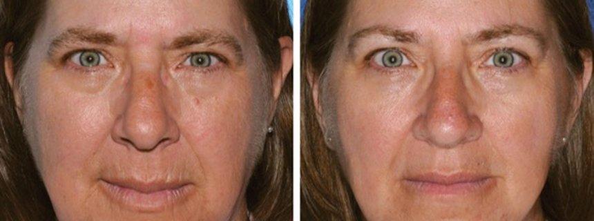 Anti-Aging-Forschung: Warum Zellen altern