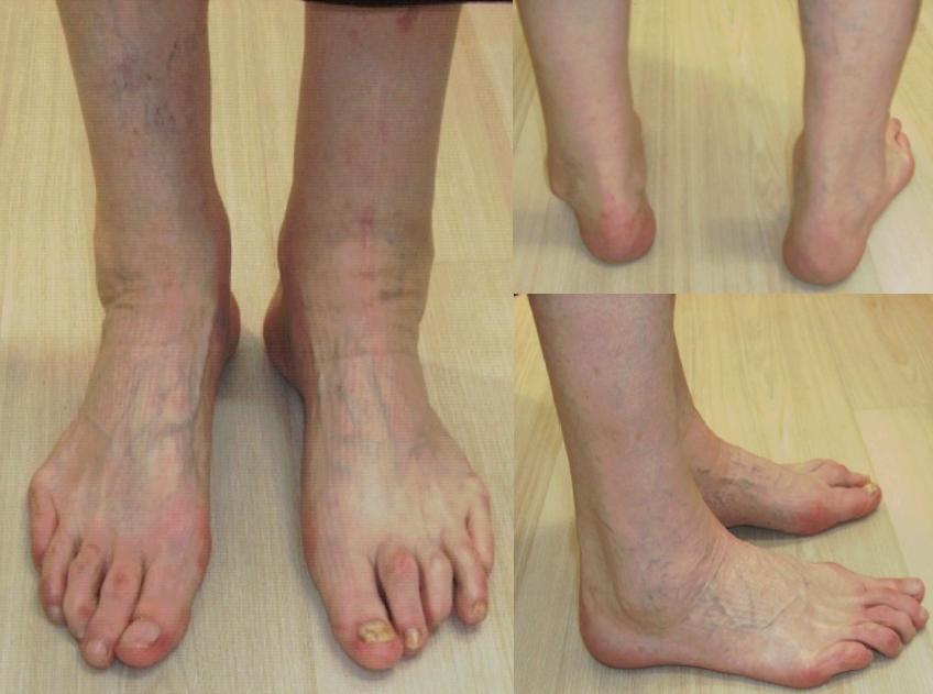 Arthrose: uebliche Therapien meist nutzlos