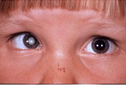 Augen-OP, Grauer Star: Blog-Artikel, revisited