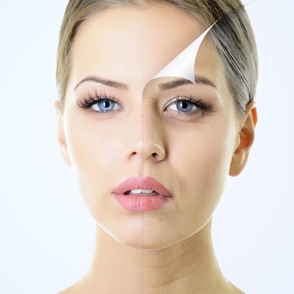 Botox & Co.: Alles glatt?