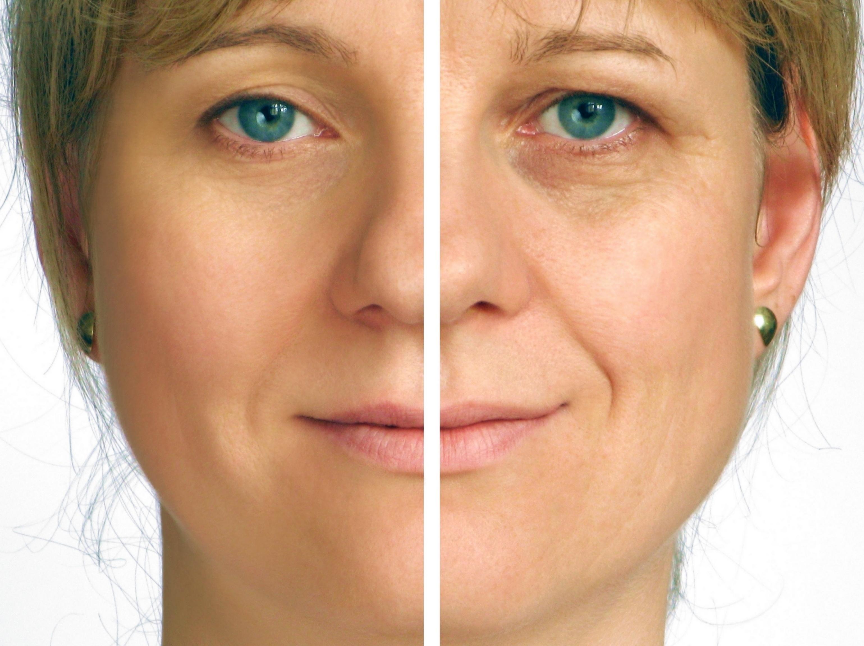 Botox - Wundermittel oder Giftspritze?