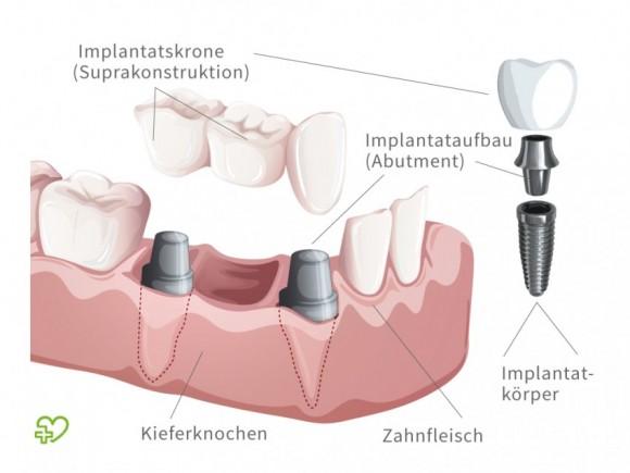 Für gute Implantate München besuchen