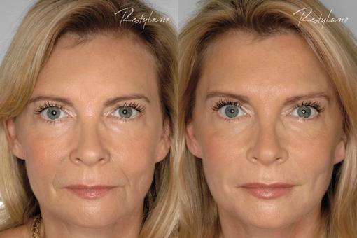 Faltenfreie Haut – durch Hyaluronsäure
