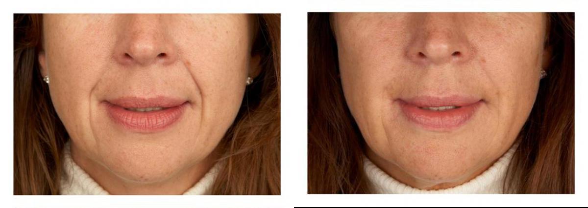 Hautverjüngung und Antiaging