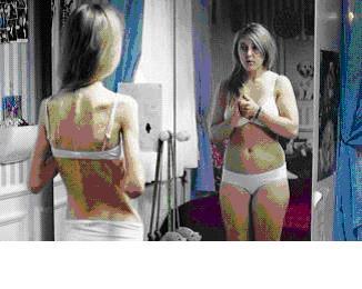 Magersucht, Anorexie: Extra Forum bei imedo