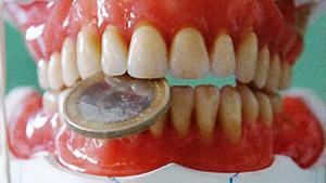 Nützlich oder nicht – die Zahnzusatzversicherung