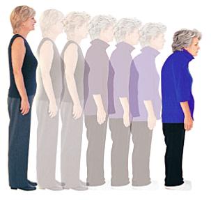 Osteoporose: neue Hilfe durch Vertebroplastie, Zement in die Knochen