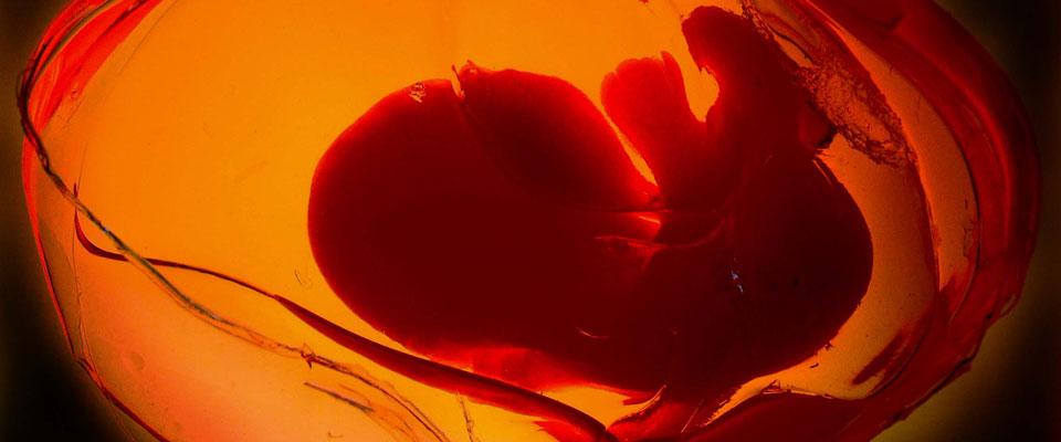 Was genau bezeichnet man als Nabelschnurblut und wofür ist Nabelschnurblut gut?