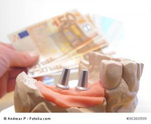 Zähneknirschen, Bruxismus: schadet Zähnen, häufiger, als man denkt