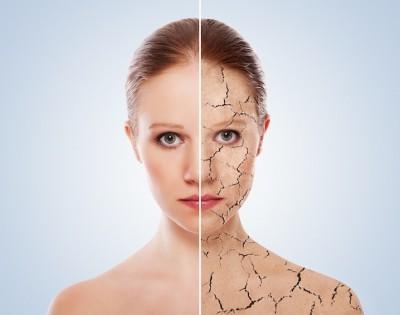 Hautkrankheiten – Mundrose