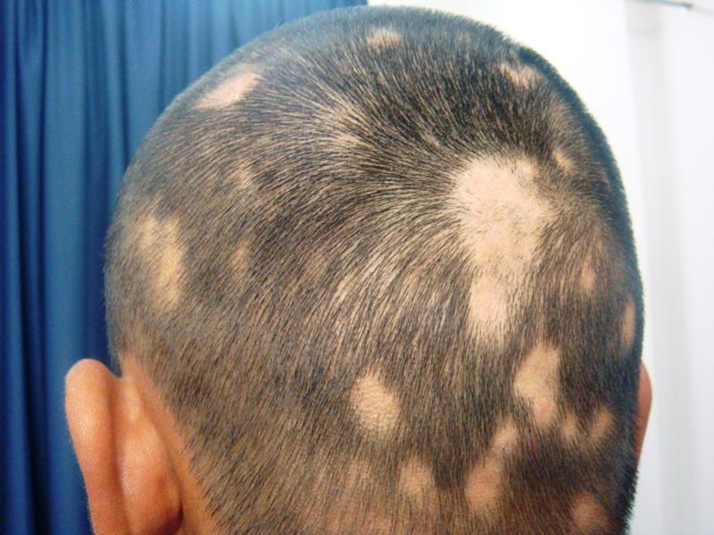 Lösungen bei Alopezie