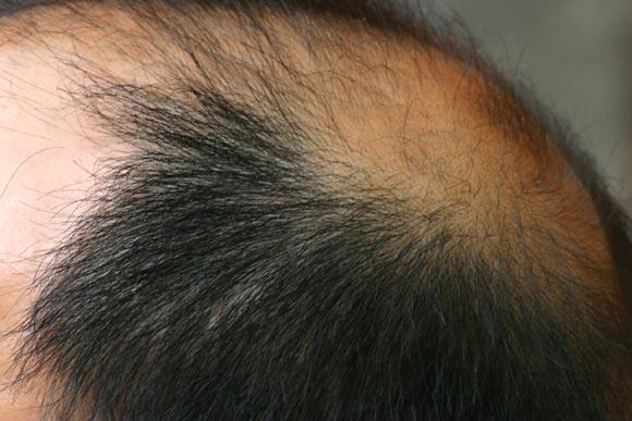 Eigenhaartransplantation gibt es noch weitere Behandlungsmöglichkeiten einer Alopezie