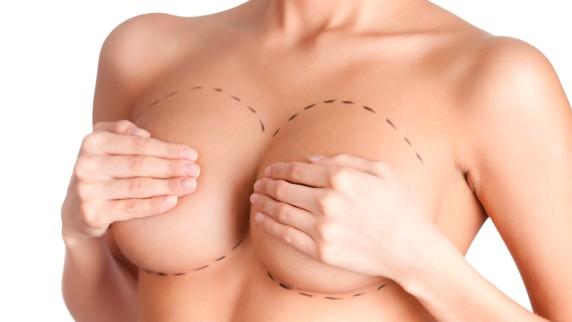 Weniger Gewicht, weniger straffe Brüste
