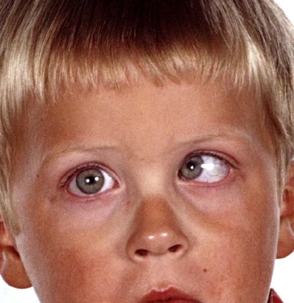 Wodurch wird Schielen bei Kindern hervorgerufen?