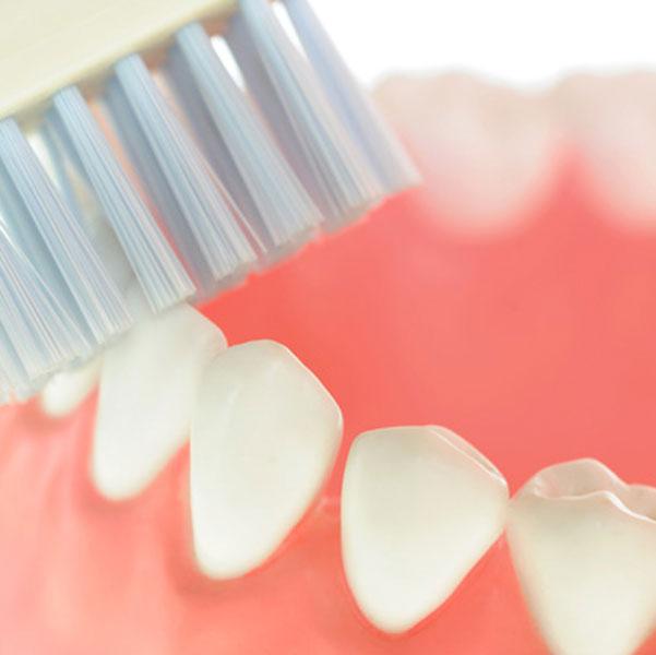 Zahnpflegetipps: So beugt man Karies vor